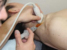 上肢痛に対する頚部神経根ブロックの施術写真
