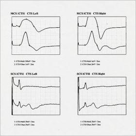 神経伝導検査4